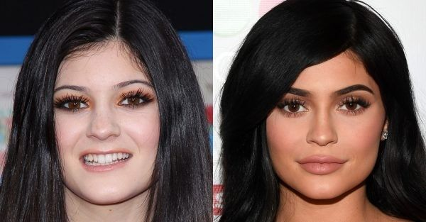 Kylie Jenner Before and after Surgery